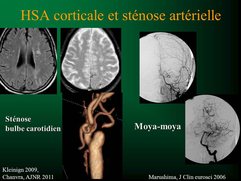 HSA corticale et sténose artérielle