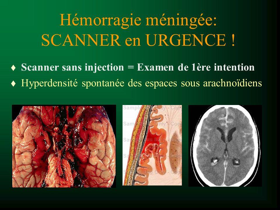 Hémorragie méningée: SCANNER en URGENCE !