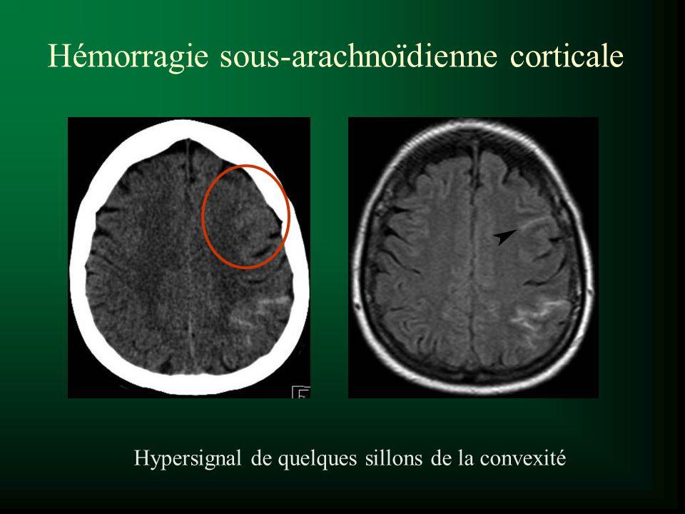 Hémorragie sous-arachnoïdienne corticale