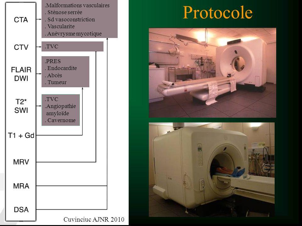 Protocole Cuvinciuc AJNR 2010