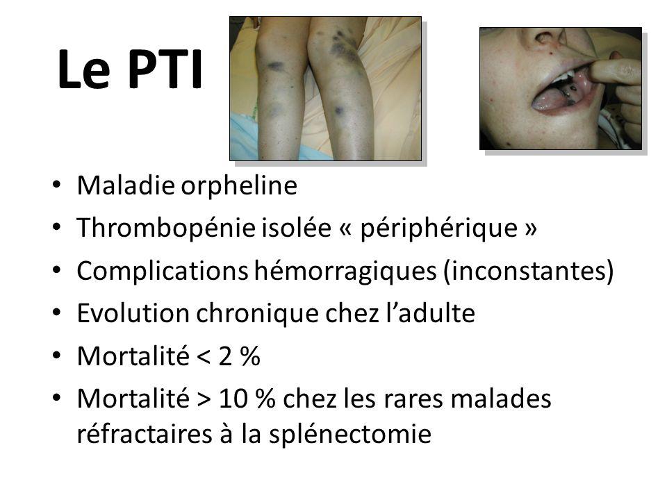 Le PTI Maladie orpheline Thrombopénie isolée « périphérique »