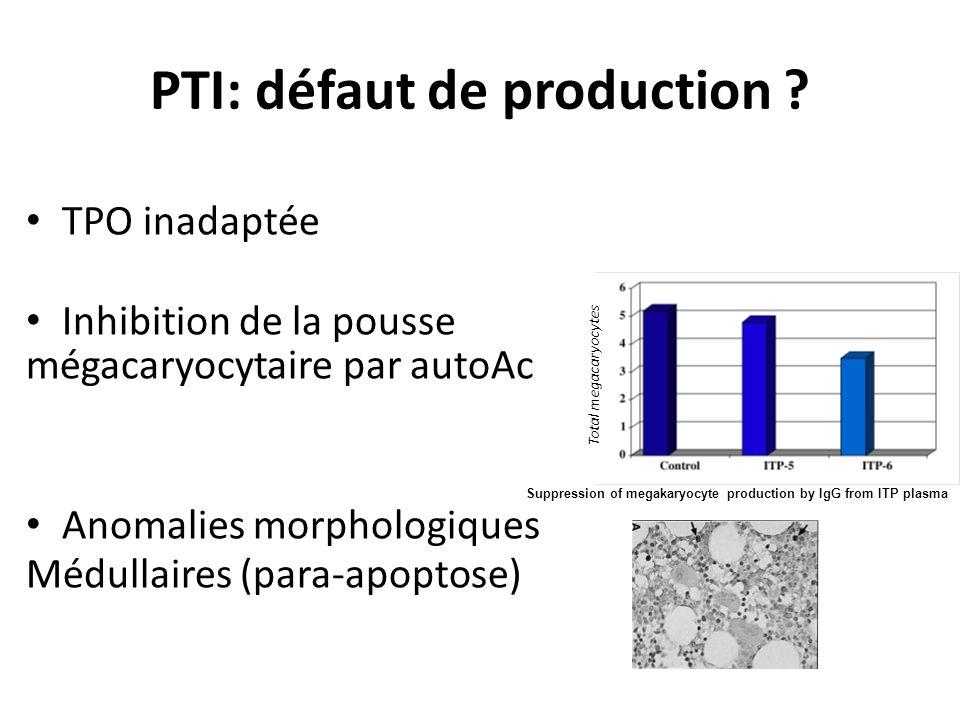 PTI: défaut de production
