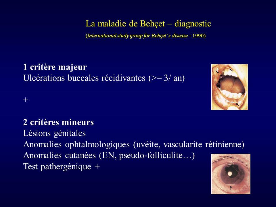 La maladie de Behçet – diagnostic