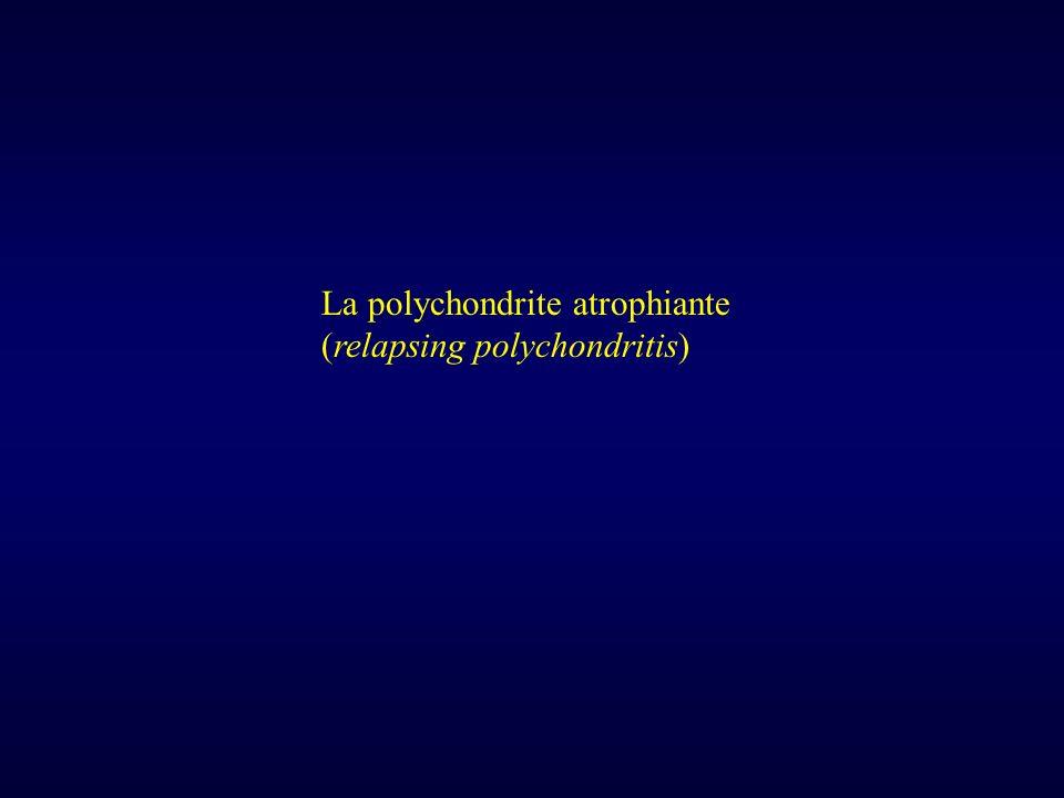 La polychondrite atrophiante
