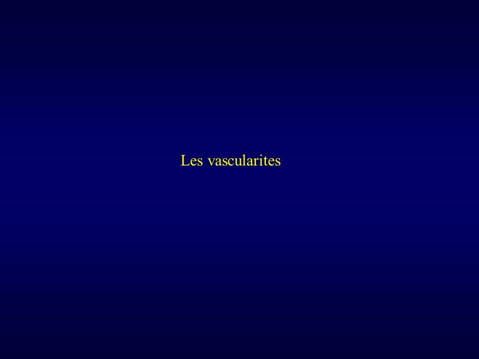 Les vascularites