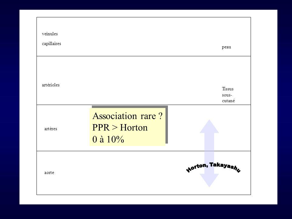 Association rare PPR > Horton 0 à 10% veinules capillaires peau