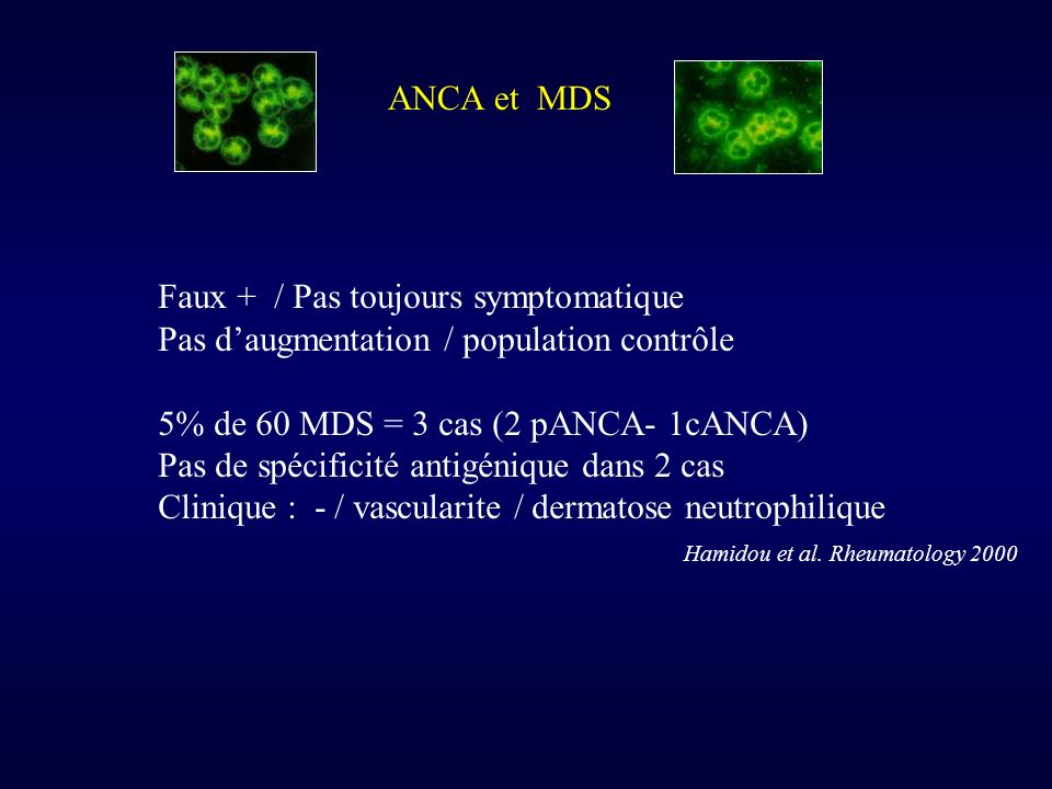 ANCA et MDS Faux + / Pas toujours symptomatique. Pas d'augmentation / population contrôle. 5% de 60 MDS = 3 cas (2 pANCA- 1cANCA)
