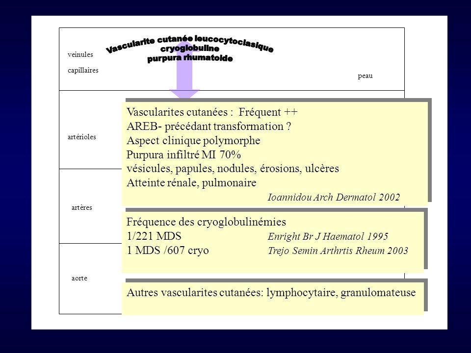 Vascularite cutanée leucocytoclasique