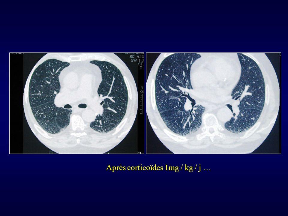 Après corticoïdes 1mg / kg / j …