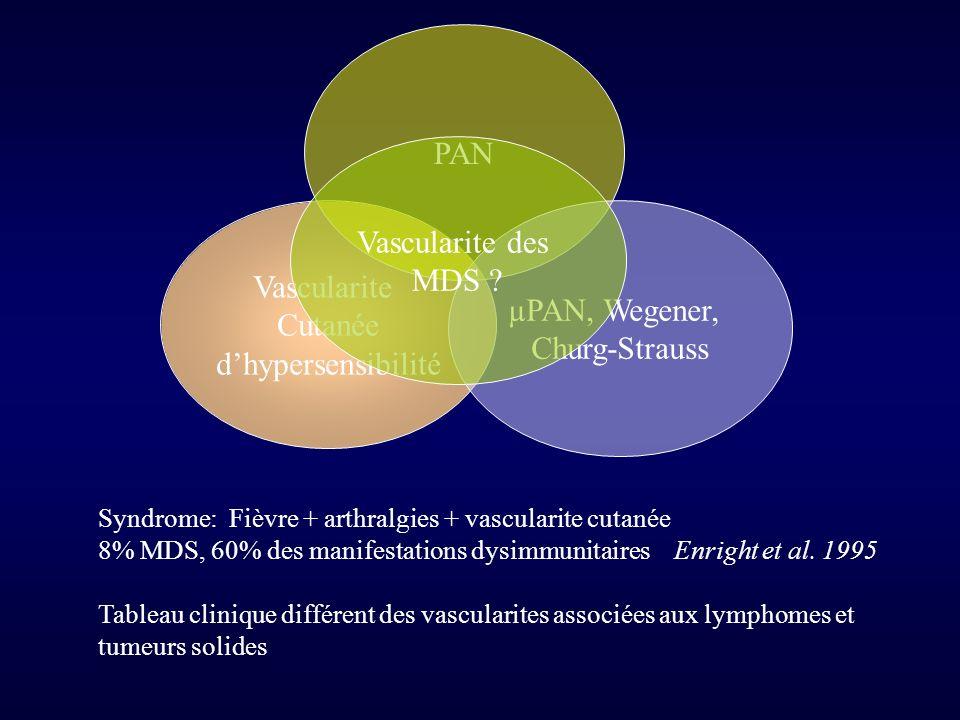PAN Vascularite des MDS Vascularite µPAN, Wegener, Cutanée