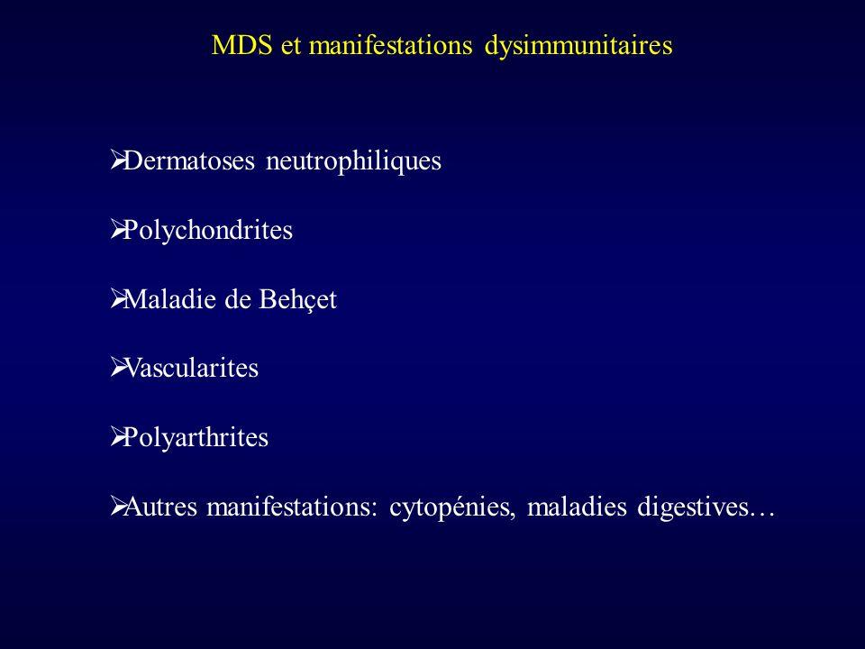 MDS et manifestations dysimmunitaires