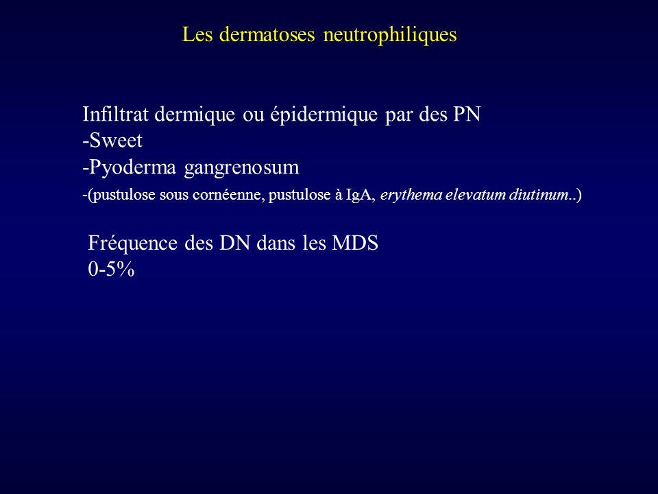 Les dermatoses neutrophiliques