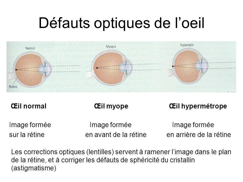 Défauts optiques de l'oeil