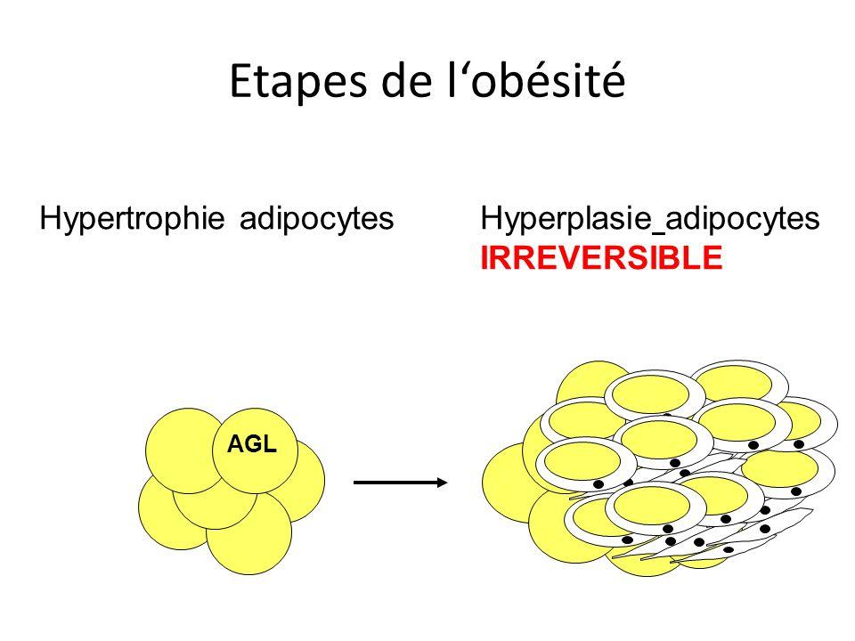 Etapes de l'obésité Hypertrophie adipocytes
