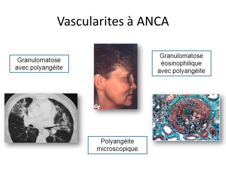 Vascularites à ANCA Granulomatose éosinophilique avec polyangéite