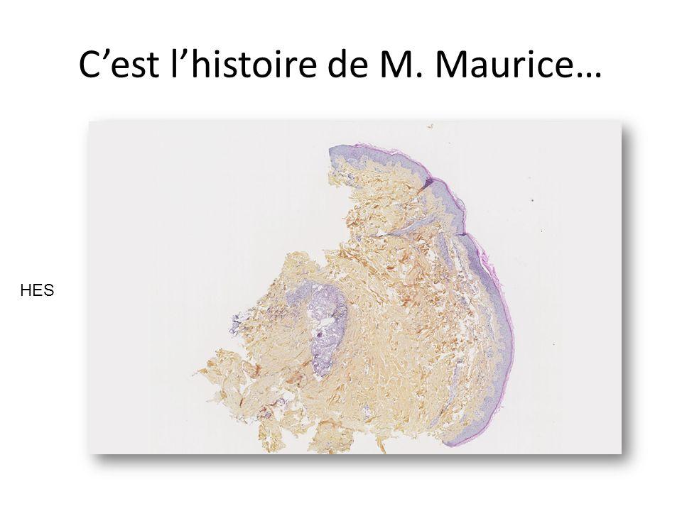 C'est l'histoire de M. Maurice…