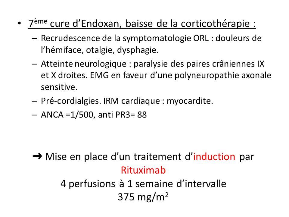 7ème cure d'Endoxan, baisse de la corticothérapie :