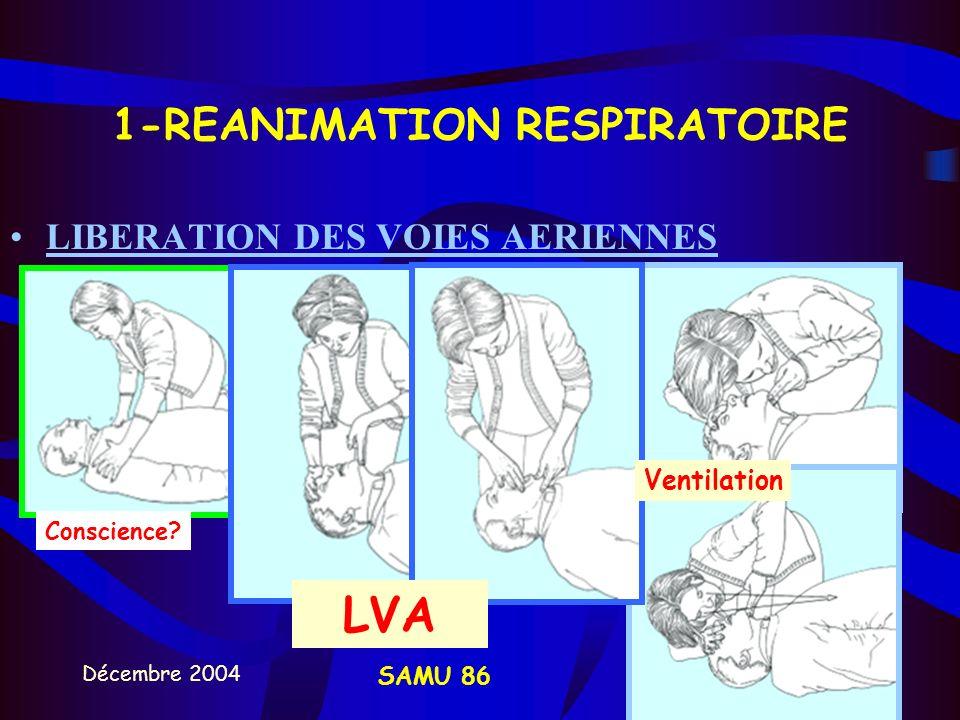 1-REANIMATION RESPIRATOIRE