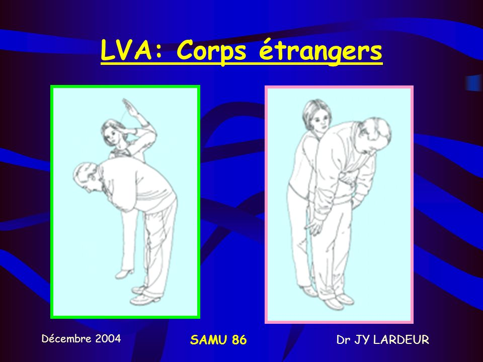 LVA: Corps étrangers