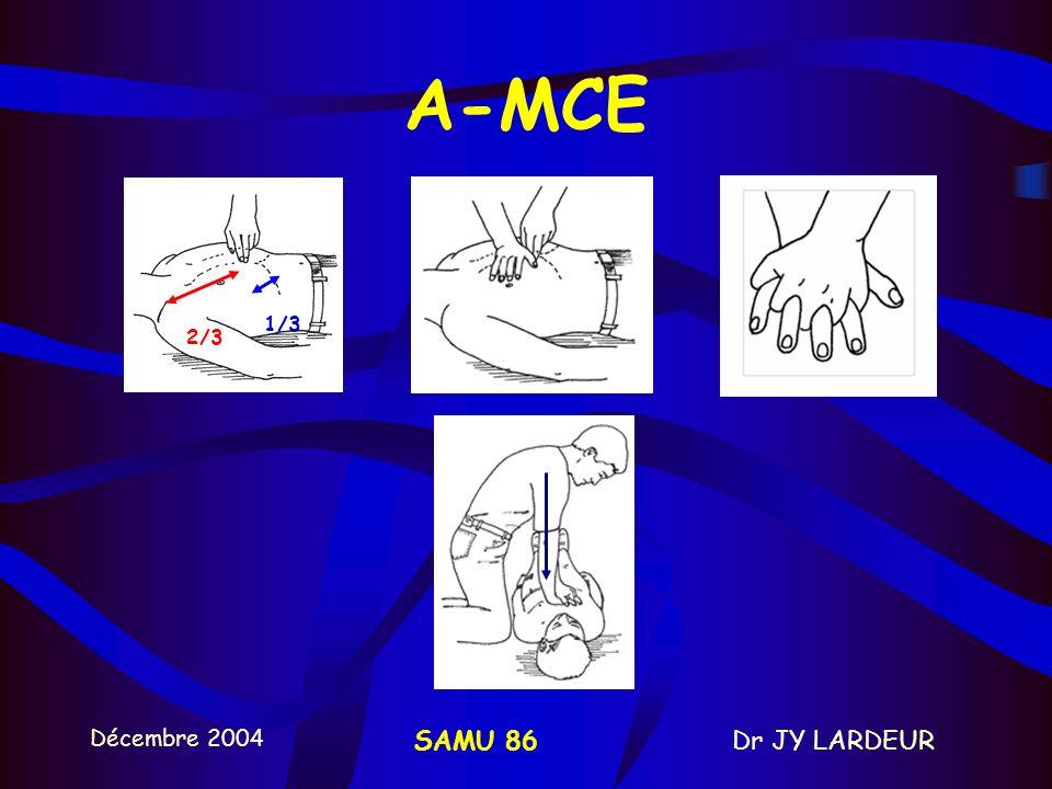 A-MCE 1/3 2/3