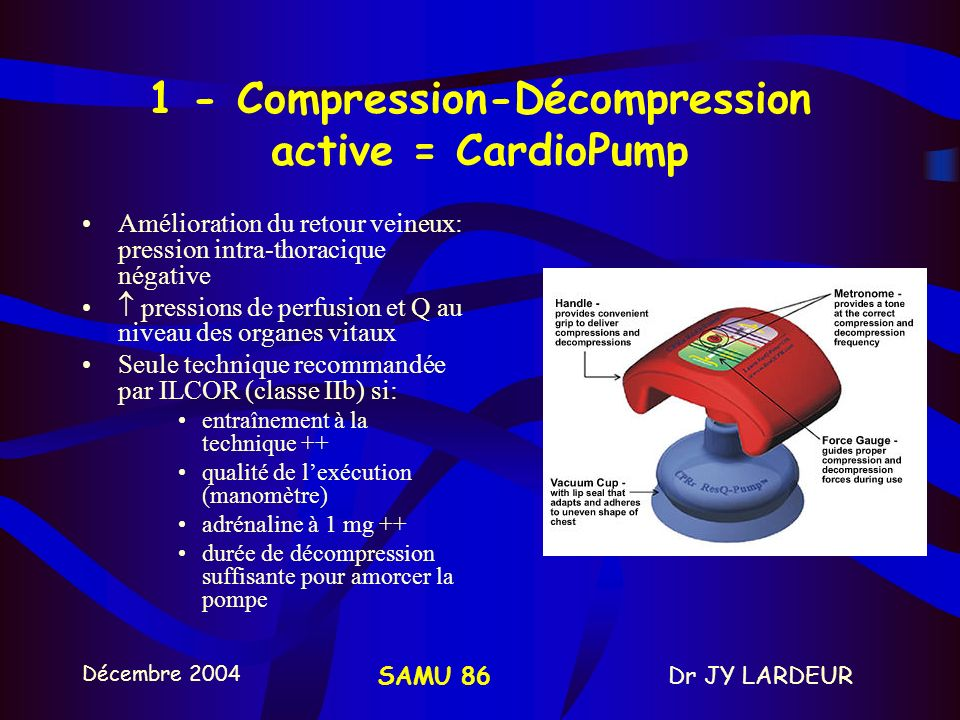 1 - Compression-Décompression active = CardioPump