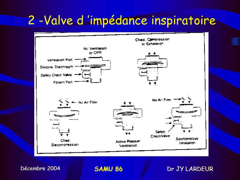 2 -Valve d 'impédance inspiratoire