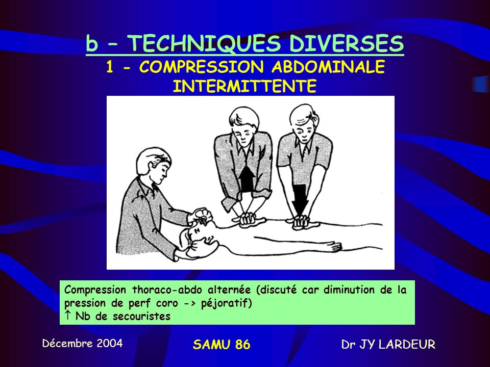 b – TECHNIQUES DIVERSES 1 - COMPRESSION ABDOMINALE INTERMITTENTE