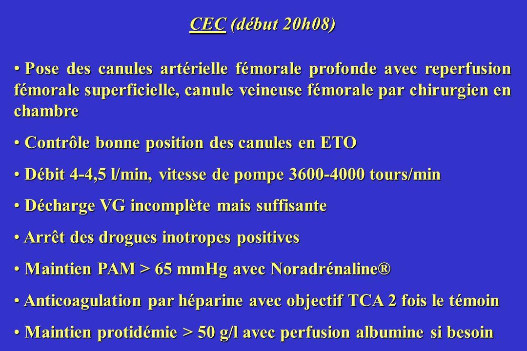 CEC (début 20h08)