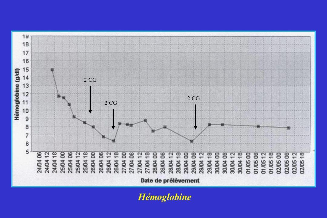 2 CG 2 CG 2 CG Hémoglobine