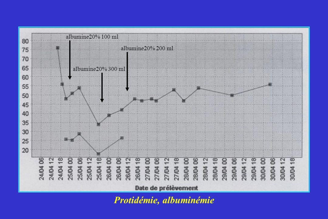 Protidémie, albuminémie