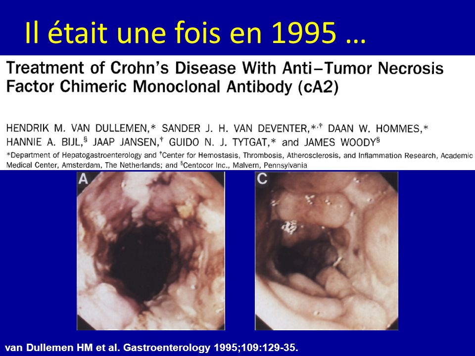 Il était une fois en 1995 … van Dullemen HM et al. Gastroenterology 1995;109:129-35.