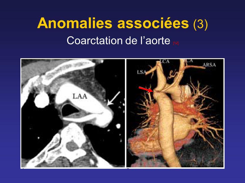 Anomalies associées (3)