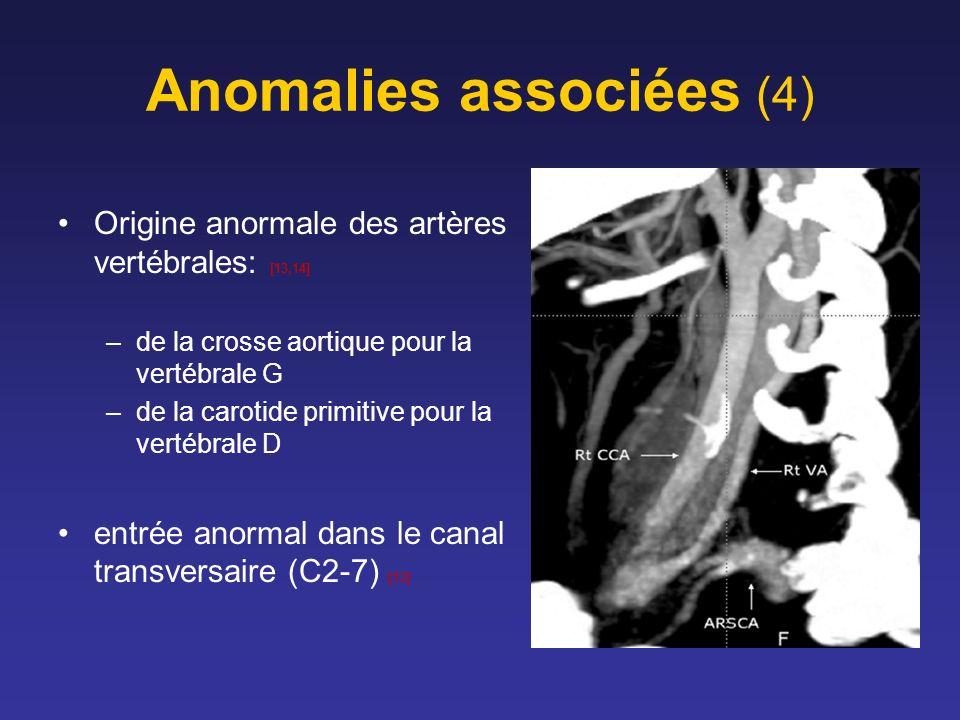 Anomalies associées (4)