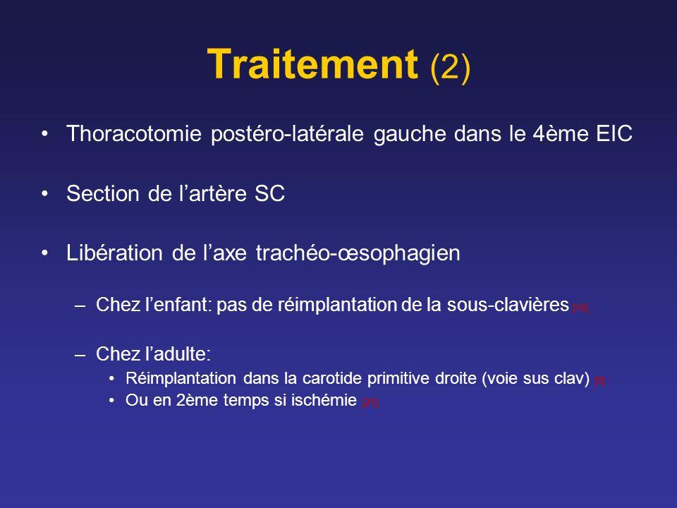 Traitement (2) Thoracotomie postéro-latérale gauche dans le 4ème EIC