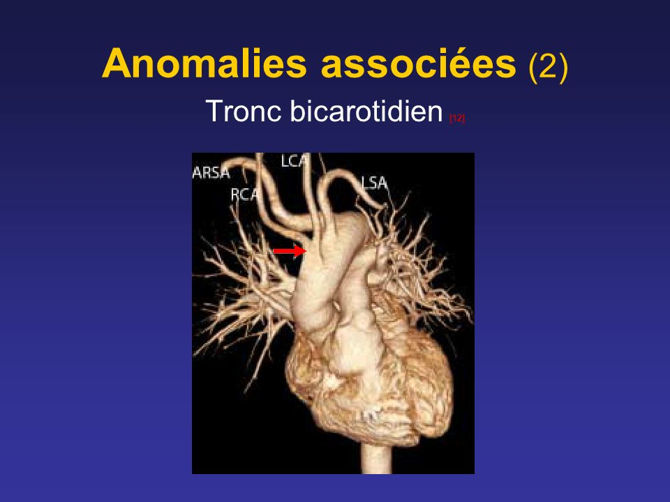 Anomalies associées (2)