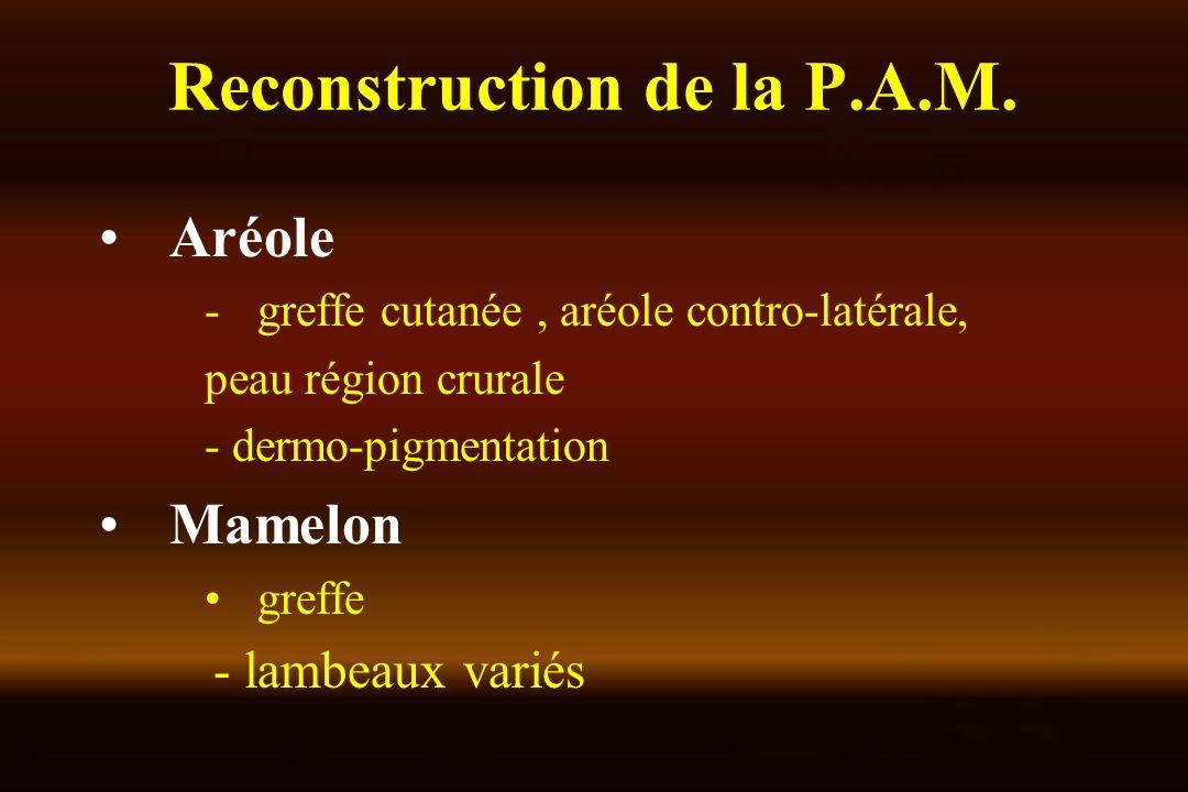 Reconstruction de la P.A.M.