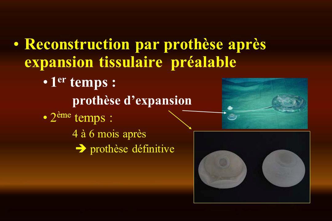 Reconstruction par prothèse après expansion tissulaire préalable