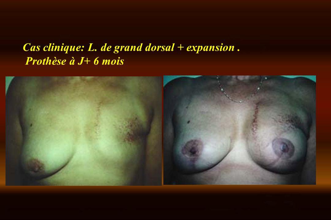 Cas clinique: L. de grand dorsal + expansion .