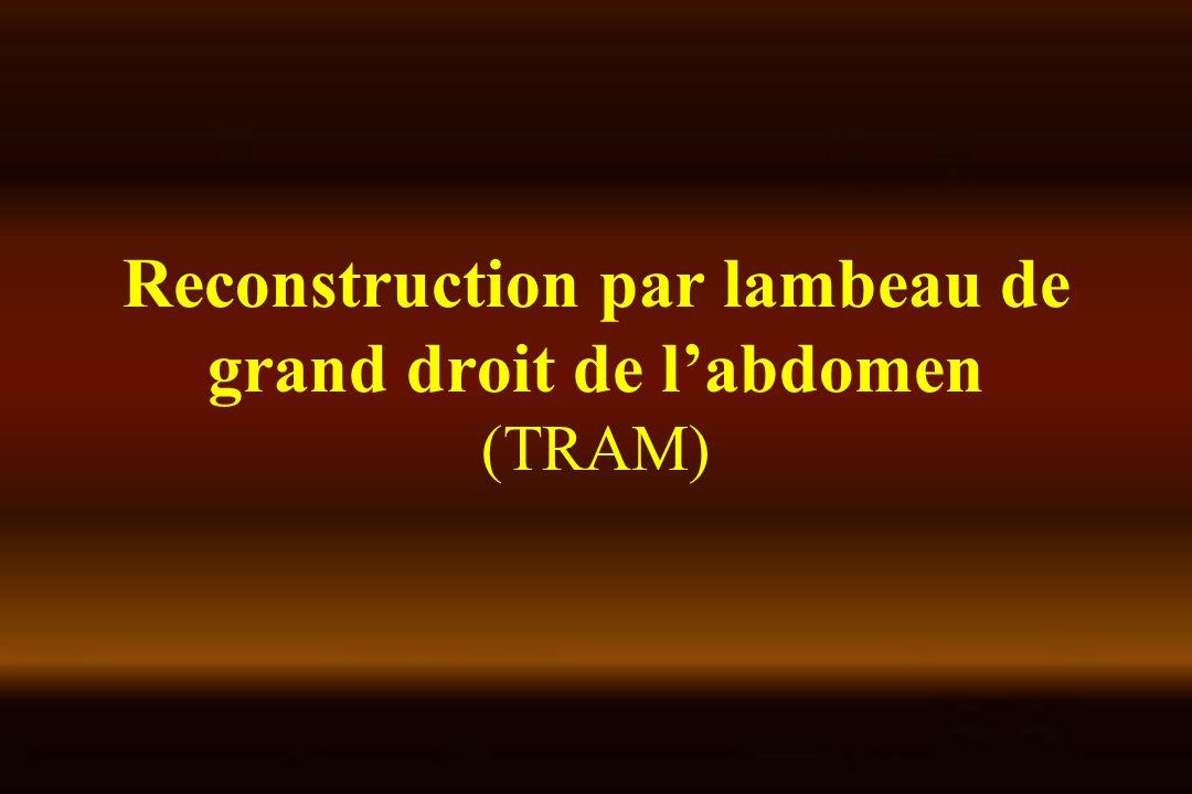 Reconstruction par lambeau de grand droit de l'abdomen (TRAM)