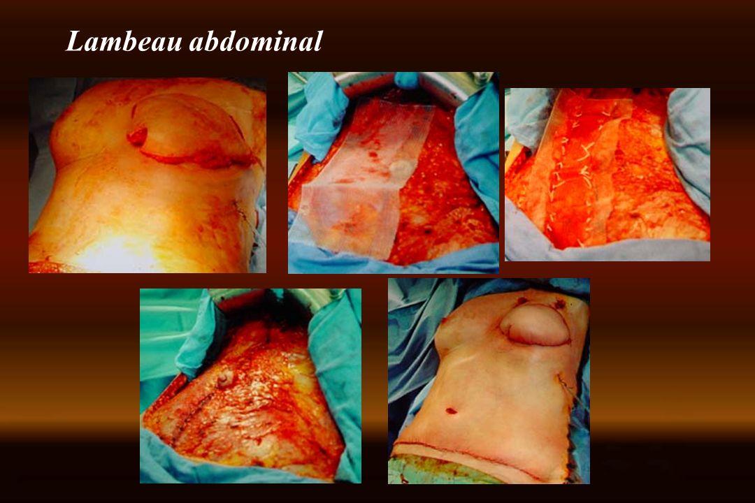 Lambeau abdominal