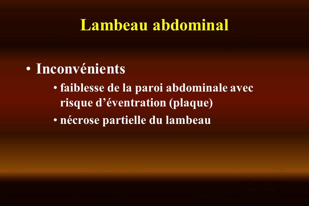 Lambeau abdominal Inconvénients