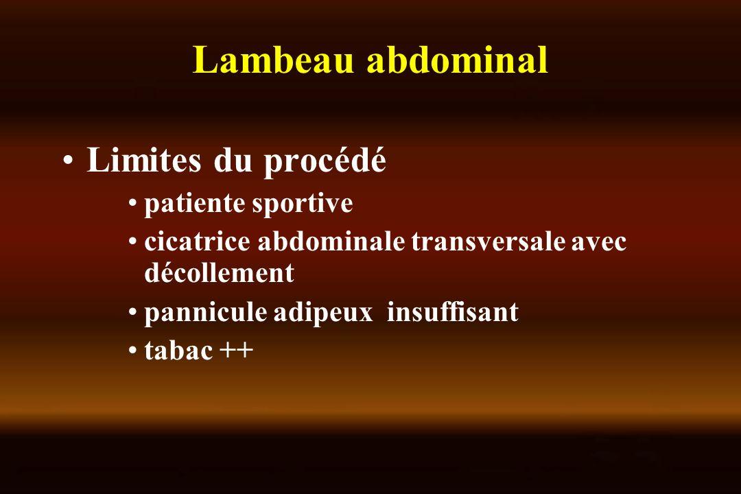 Lambeau abdominal Limites du procédé patiente sportive