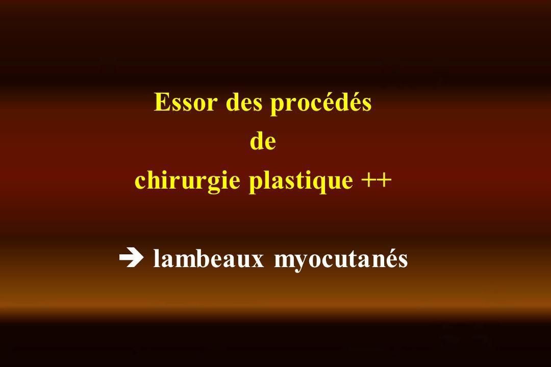 chirurgie plastique ++