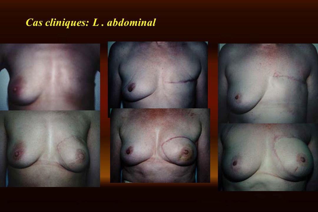 Cas cliniques: L . abdominal