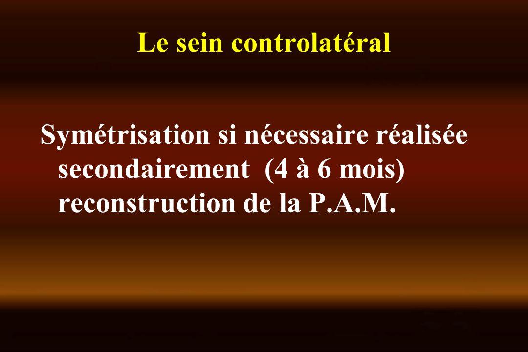Le sein controlatéral Symétrisation si nécessaire réalisée secondairement (4 à 6 mois) reconstruction de la P.A.M.