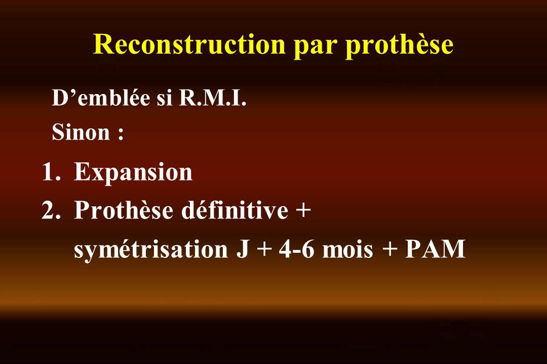 Reconstruction par prothèse