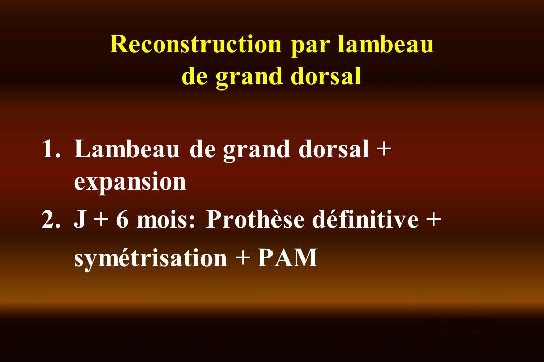 Reconstruction par lambeau de grand dorsal