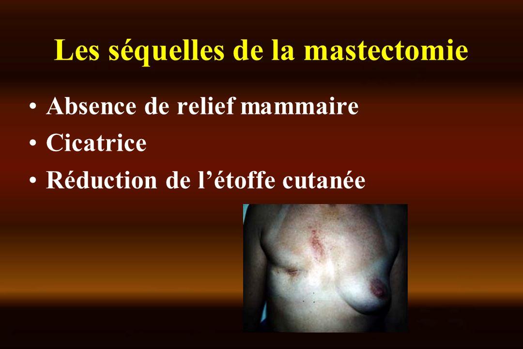Les séquelles de la mastectomie