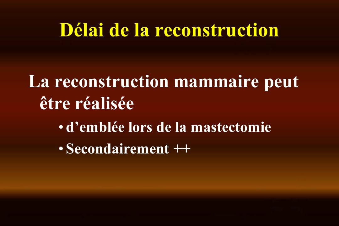 Délai de la reconstruction