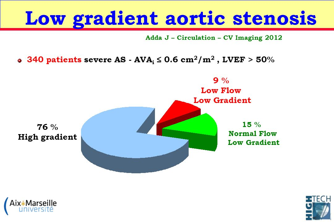 Low gradient aortic stenosis